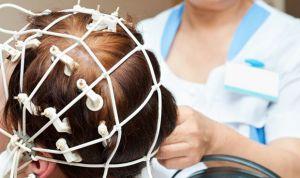 La estimulación cerebral mejora el rendimiento cognitivo en esquizofrenia