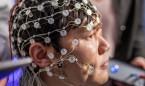 La estimulación cerebral puede reducir los síntomas de la depresión