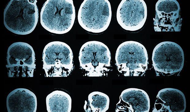 La estimulación eléctrica sincronizada del cerebro mejora la memoria