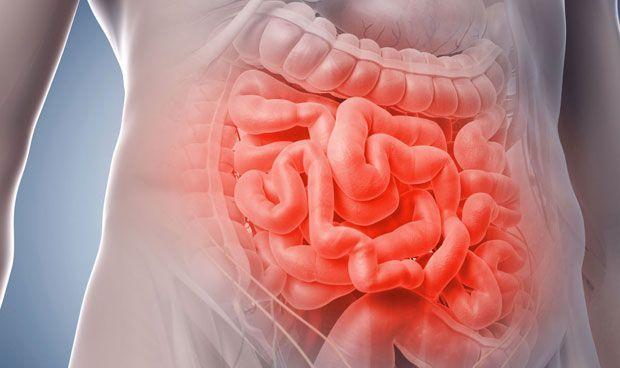 como aliviar el sindrome de intestino irritable