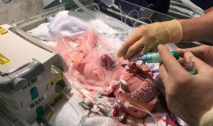 La historia del bebé que nació con el corazón fuera del pecho y sobrevivió