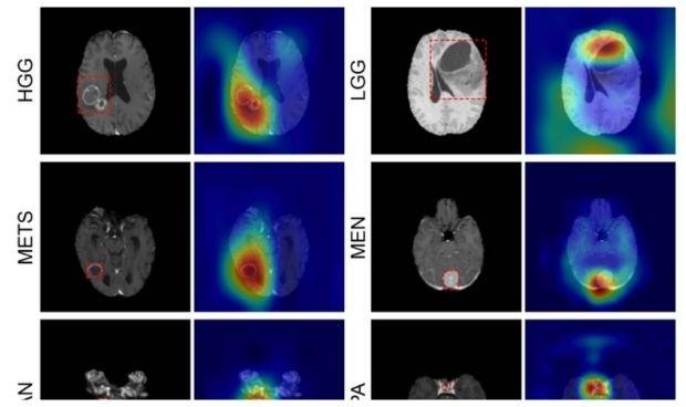 La IA detecta y clasifica los tumores cerebrales con resonancia magnética