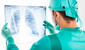 La incidencia del cáncer de pulmón crecerá un 21% la próxima década