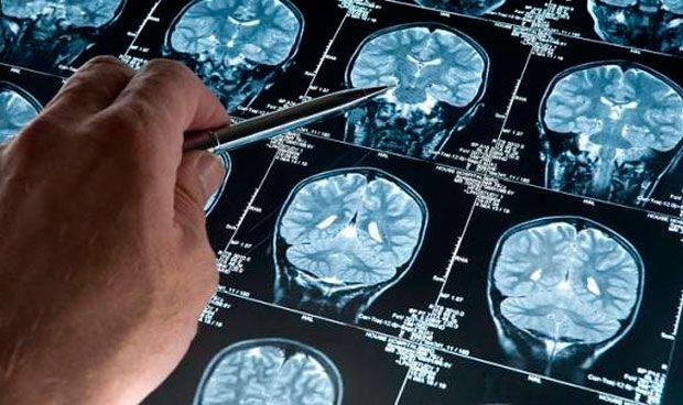 La magnetoencefalografía discrimina la causa de la pérdida de memoria