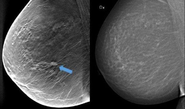 La mamografía en 3D detecta un 30% más de tumores que la estándar