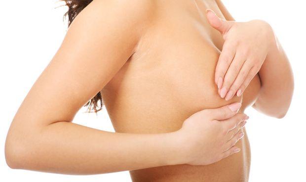 La mastectomía con preservación del pezón evita recaídas en cáncer de mama