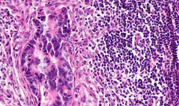 La met�stasis no siempre afecta a los ganglios linf�ticos cercanos
