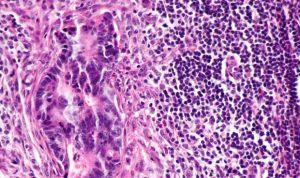 La metástasis no siempre afecta a los ganglios linfáticos cercanos