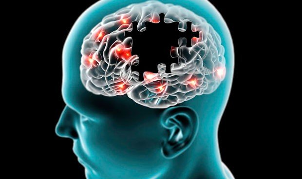 La mitad de los pacientes con párkinson, propensa a sufrir alucinaciones