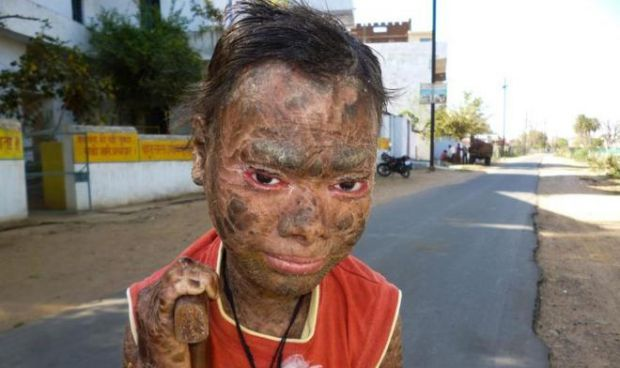 La niña con 'piel de serpiente' sueña con estudiar Medicina