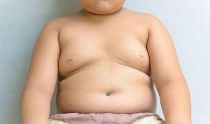 La obesidad afecta a la salud del hígado en niños hasta los 8 años