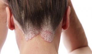 La psoriasis afecta de forma grave o muy grave a 2 de cada 10 pacientes