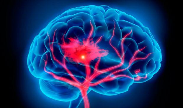 La recuperaci�n de accidente cerebrovascular mejora con privaci�n sensorial