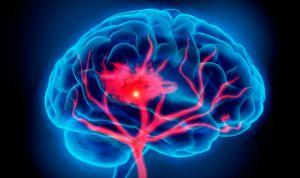 La recuperación de accidente cerebrovascular mejora con privación sensorial