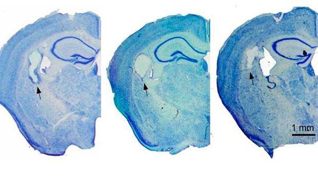 La seda, un biomaterial inocuo que puede reparar el cerebro