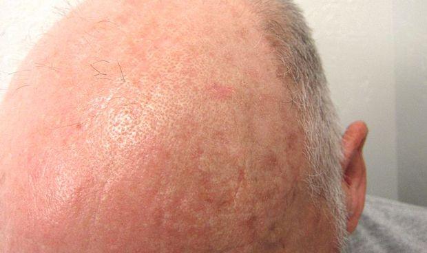 La terapia con microagujas reduce la queratosis actínica hasta en un 76%