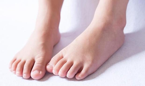 La toxina botulínica es útil en Dermatología pediátrica