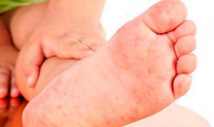 La urticaria afecta a uno de cada cinco niños