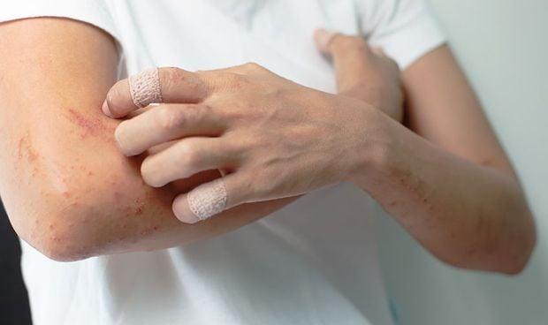 La urticaria merma la salud sexual y la vida social del 70% de afectados