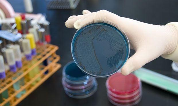Las bacterias intestinales causan enfermedades autoinmunes