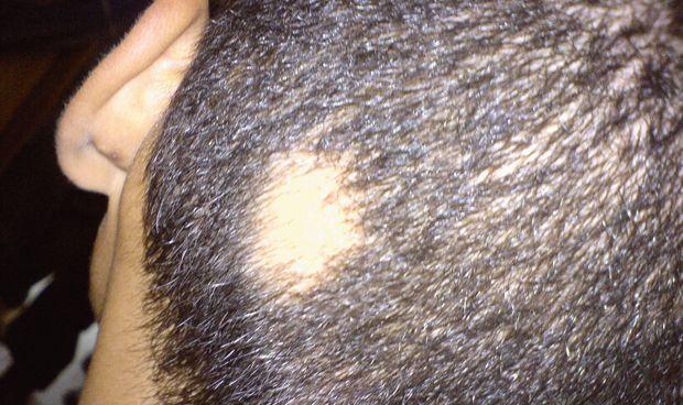 Las células madres comienzan a dar resultado contra la alopecia