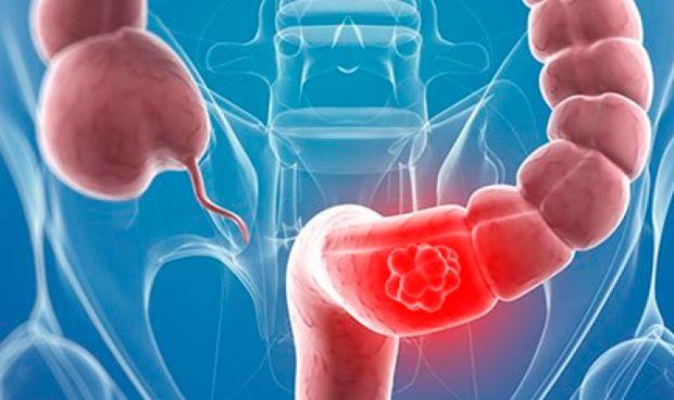 Las proteínas de la dieta, claves en la prevención del cáncer colorrectal