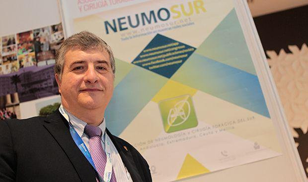 Las sociedades autonómicas de Neumología llegan a un consenso en asma grave
