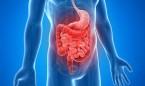 Las tasas de cáncer colorrectal y de páncreas crecen un 10% en 30 años