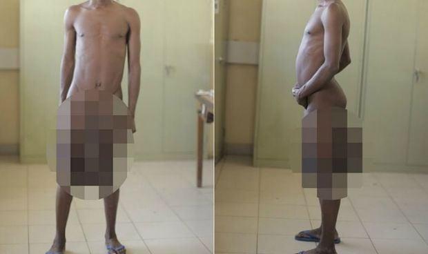 Logran reducir el pene de un metro de un hombre con elefantiasis escrotal