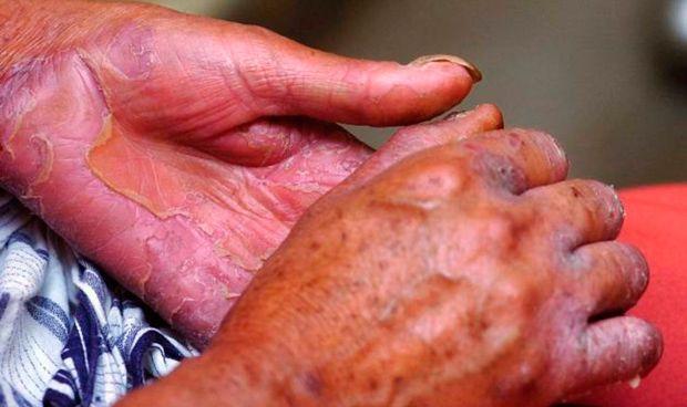 Los casos de lepra crecen un 1,9% en 2016, la primera subida en cuatro años