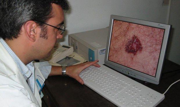 Los centros de AP registran 16.000 consultas de teledermatología en 2018