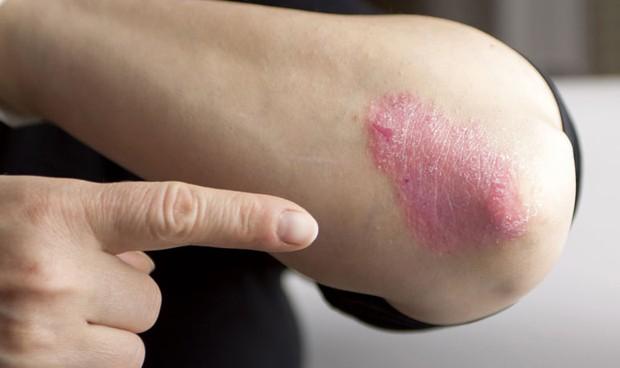 Los dermatólogos británicos cuestionan la relación entre psoriasis y cáncer
