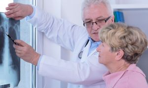 Los hombres precisan más controles de cáncer de pulmón que las mujeres