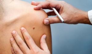 Los melanomas en extremidades inferiores afectan más a las mujeres