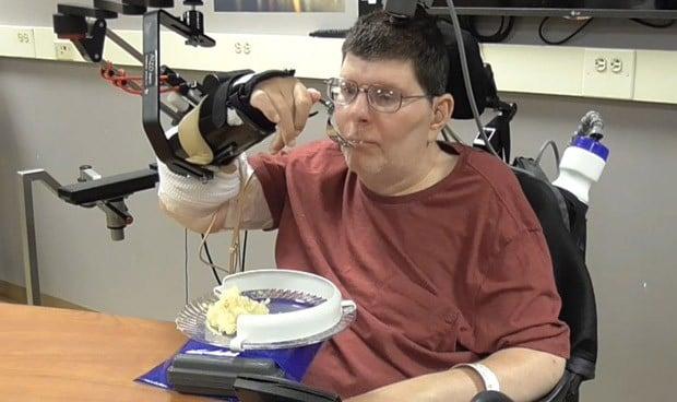 Los neuroprocesadores hacen posible que un tetrapléjico vuelva a comer solo