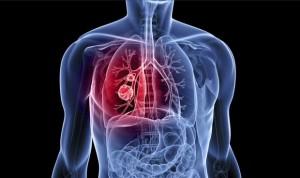 Los pacientes reclaman los nuevos medicamentos de fibrosis quística