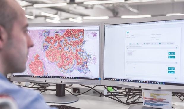 Los patólogos prefieren la solución digital de Philips al microscopio
