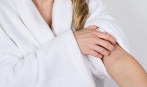 Los síntomas del eczema doloroso afectan negativamente a la calidad de vida