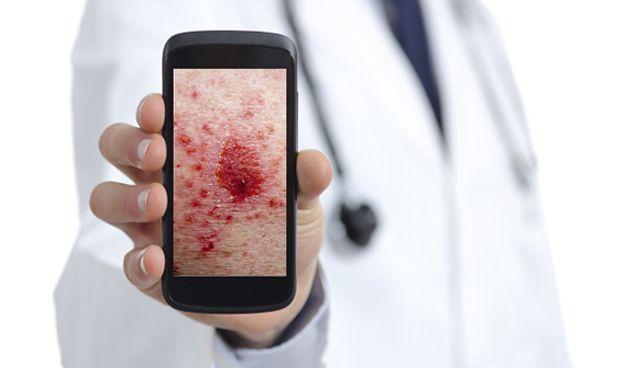 Los smartphones ayudan al dermatólogo a diagnosticar afecciones de la piel