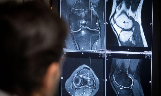 Manises realiza 750 cirugías de prótesis de rodilla asistidas por ordenador