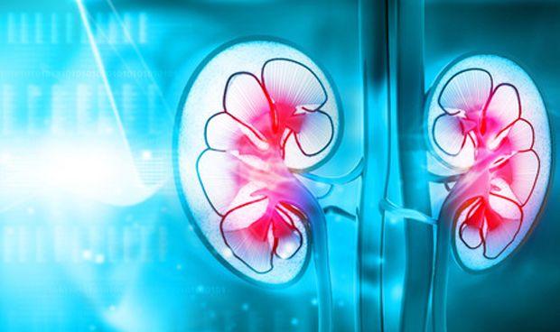 Más peligro de melanoma en pacientes trasplantados de riñón
