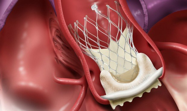 Medtronic obtiene marcado CE en TAVI para tratar estenosis aórtica severa