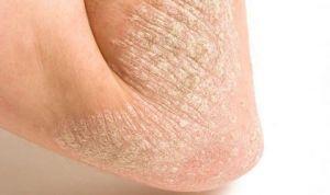 Mejorar la salud de la piel reduce el riesgo de diabetes tipo 2