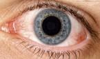 Miranza pone en marcha nuevas áreas especializadas en ojo seco