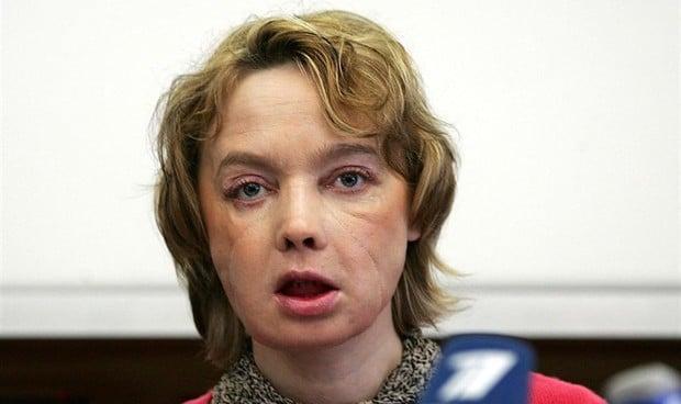 Muere a los 49 años la primera persona trasplantada de cara del mundo