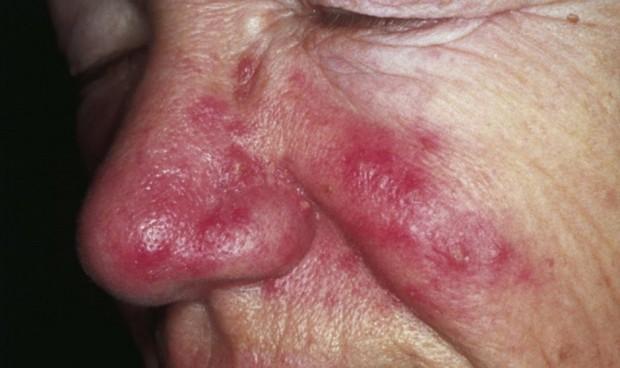 Mujer, mayor de 50 y con rosácea: perfil del paciente propenso a la migraña