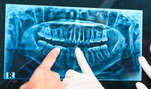 Multa de 2,5 millones por implantar una prótesis a una mujer alérgica