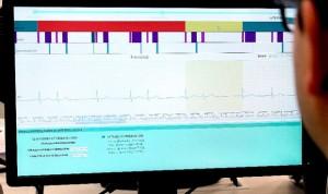 """Nace el sistema """"más preciso del mundo"""" en interpretar electrocardiogramas"""