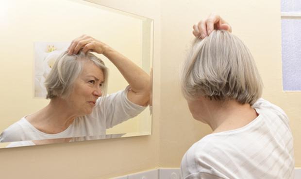 No hay evidencia de que las vitaminas frenen la alopecia femenina