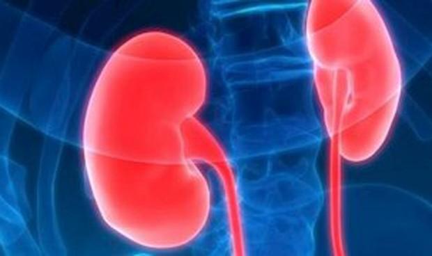 Una nueva biopsia líquida logra detectar cáncer de riñón en fase temprana